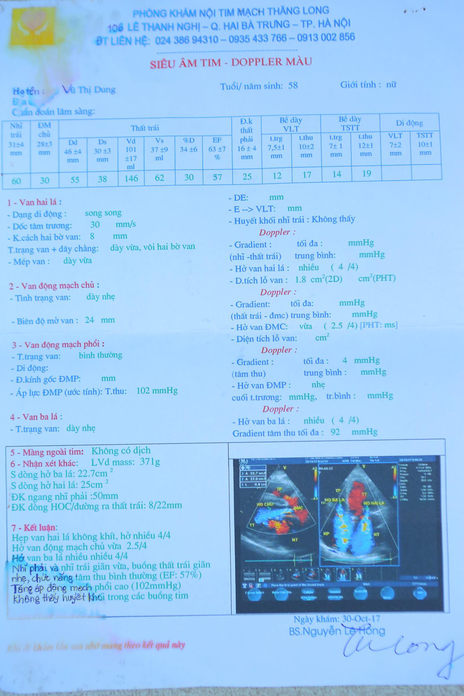 Kết quả khám bệnh hở van tim của cô Dung tại Bệnh viện Bạch Mai
